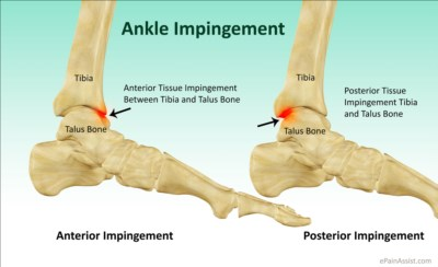 Ankle Impingement Syndrome Ankle Joint Injuries And